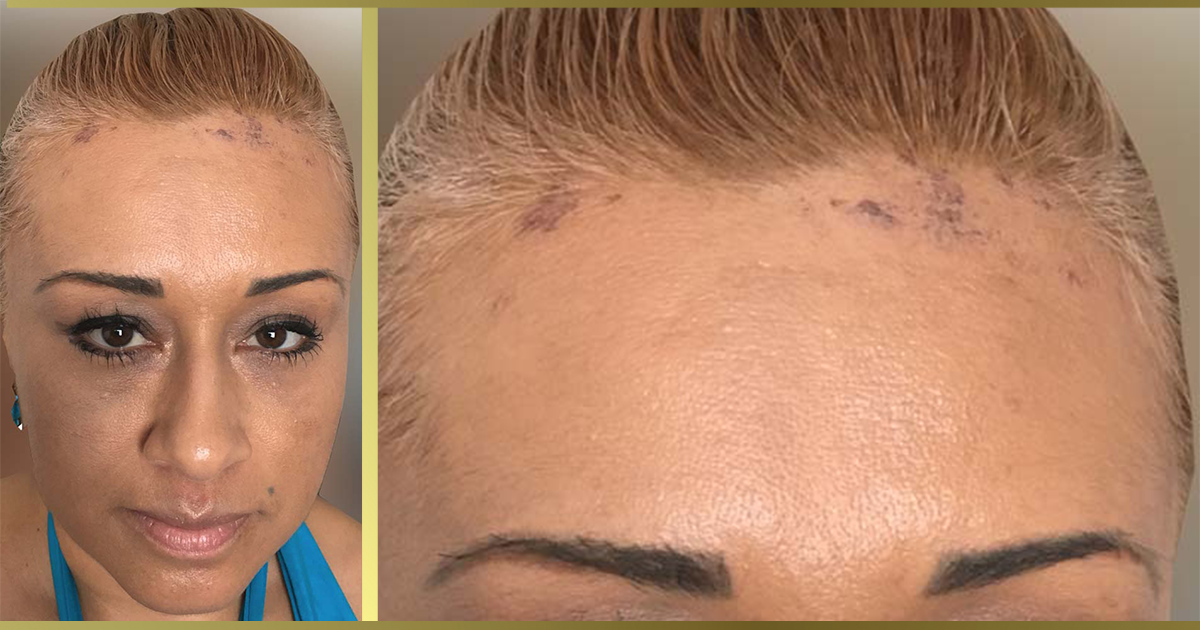 Chemical Burns From Hair Color Cranial Prosthesis